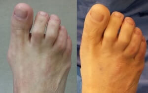 Minimally Invasive Bunion Surgery Pictures Before and After Operation Orange County