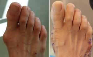 bunion surgeon in newport beach california before and after pictures bunion surgery orange county