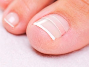 curve-correct for curved or ingrown nail ease