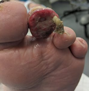 Toe Infection Irvine before surgery
