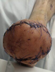 transmetatarsal amputation with flap